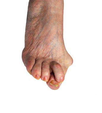Doigts griffes de hallux forum valgus pieds en Hallux valgus